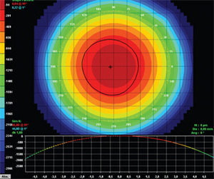 Corneal topographer and topography