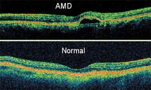 Optical Coherence Tomography (OCT) Scans