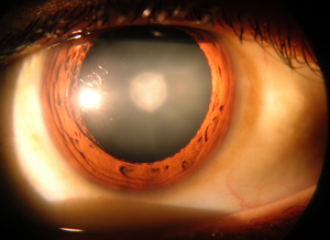 Digital Slit Lamp Photography